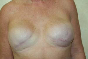 medical micropigmentation areola tattoo permanent makeup areola pigmentation after breast cancer 3d areola 3d nipple permanent makeup los angeles