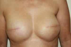 areola tattoo nipple tattoo areola nipple tattoo 3d areola 3d nipple temporary areola tattoo nipple tattoo mastectomy breast cancer awareness
