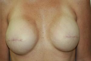 3d areola 3d nipple temporary areola tattoo nipple tattoo mastectomy breast cancer awareness
