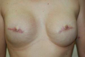 nipple tattoo areola nipple tattoo 3d areola 3d nipple temporary areola tattoo nipple tattoo mastectomy breast cancer awareness