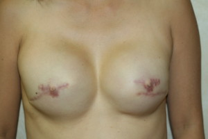 Areola Tattoo Before and After Temporary Areola Tattoo 3d areola tattoo 3d nipple reconstruction mastectomy breast cancer permanent makeup nipple tattoo los angeles