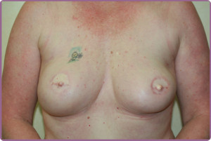 breast-cancer, medical micropigmentation areola tattoo permanent makeup areola pigmentation after breast cancer 3d areola 3d nipple permanent makeup los angeles