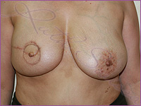 breast cancer mastectomy 3d areola areola tattoo medical micropigmentation 3d nipple nipple tattoo permanent makeup los angeles